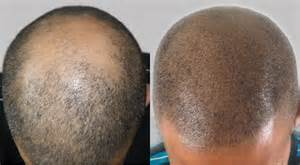 scalp micropigmentation to make hair ticker pictures scalp micropigmentation with a hair transplant