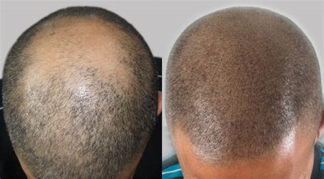 scalp micropigmentation for hair scalp micropigmentation with a hair transplant