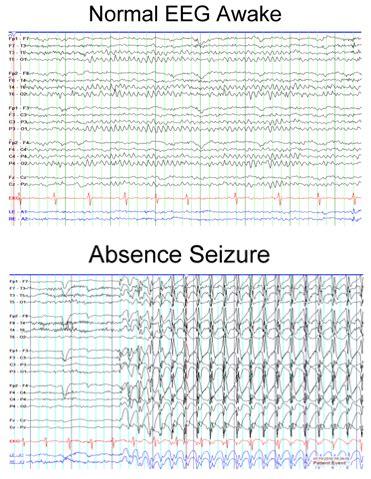 eeg pattern recognition quiz eeg of an absence seizure absence petit mal seizures
