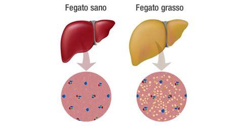 alimenti fegato grasso come trattare il fegato grasso in modo naturale i cibi da