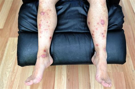 why would someone be covered in sores toxic leather chair bought on ebay leaves cardiff man