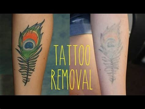 tattoo removal natural remedy how to remove a the most effective treatment