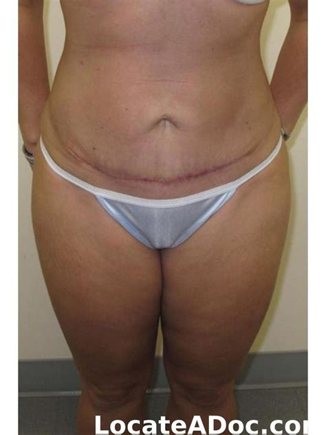 does insurance cover tummy tuck after c section 17 best images about gastric sleeve on pinterest lost