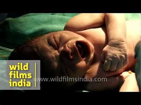 cring after c section baby s first cry after caesarean section delivery youtube
