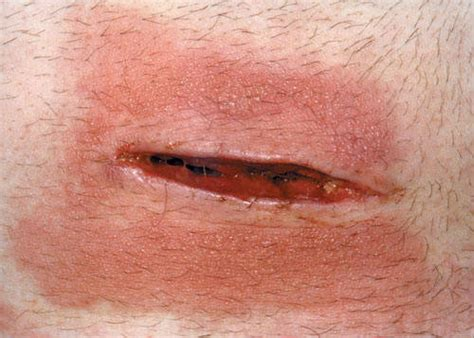 best treatment for open wounds open wound thinglink