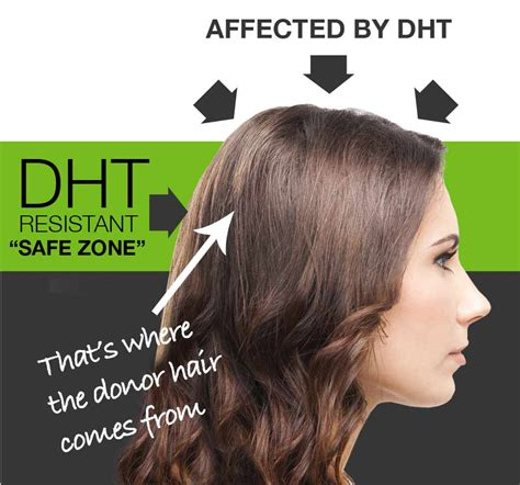 Female Pattern Hair Loss Dht | female hair loss it can be corrected