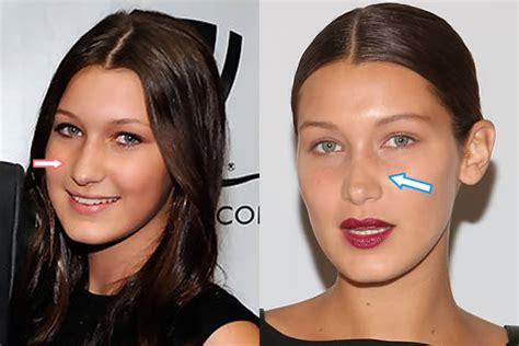 nose shaper before and after bella hadid plastic surgery transformation