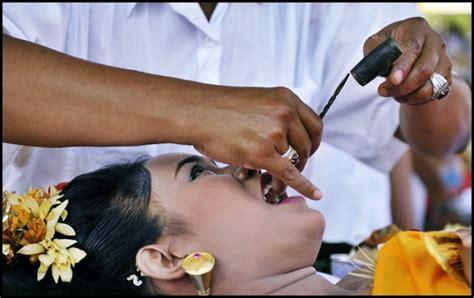 Potong Gigi Di Dokter upcara potong gigi atau metatah upacara yang wajib dilakukan bagi remaja di bali bali is my