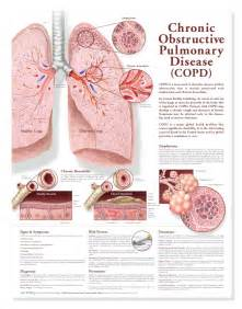 Chronic obstructive pulmonary disease copd anatomical chart 2nd