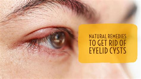 remedies to get rid of eyelid cysts