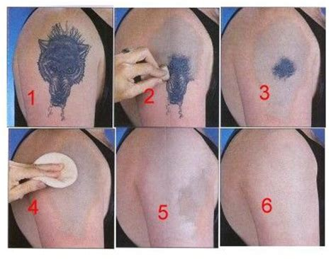 do tattoo removal creams work 22 best removal images on picture