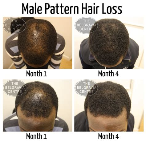 reasons for male pattern hair loss 1000 images about how to regrow female or male pattern