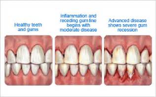 Comfort Dental Of Lafayette Gum Disease Comfort Dental Lafayette Indiana