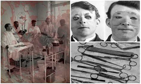 imagenes impactantes cirugias las 3 primeras e impactantes operaciones de cirug 237 a pl 225 stica