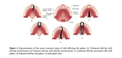 palate diagram orofacial clefts and quality of dentistry insider