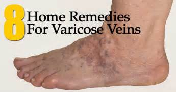 home remedies for varicose veins 8 home remedies for varicose veins