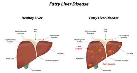 liver disease diet fatty liver diet guide autos post