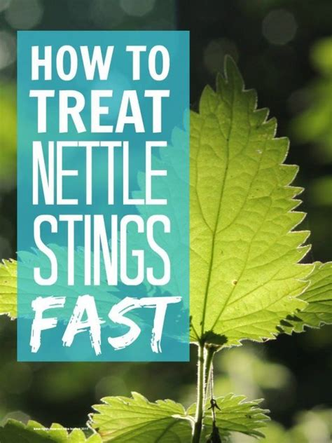 Treat Nettle Stings Mums  Lists