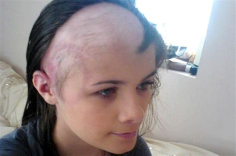 hairstyles for recovering brain surgery teenager s amazing recovery from brain tumour and stroke