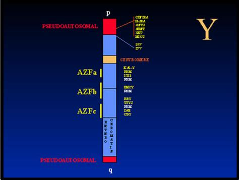 Genetics of male infertility | Stony Brook Medicine Y Chromosome Microdeletion