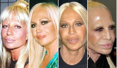 Designer Cosmetic Surgery Craze Newsvine Fashion 3 by Donatella Versace Bad Plastic Surgery Bad