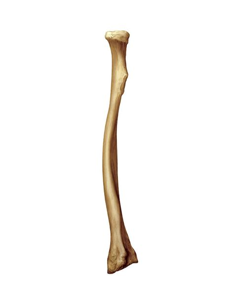 Radius Search Radius Bone Images Search
