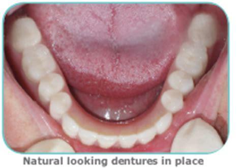 dentures dentists   kent road dental london se