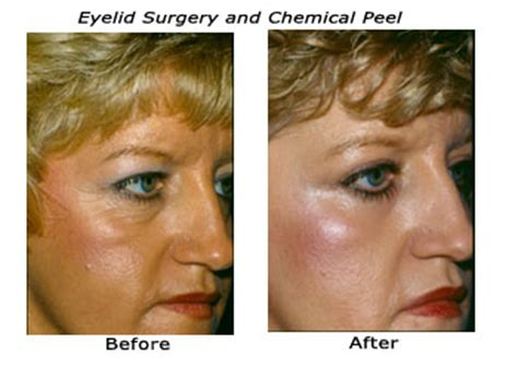 chemical peels memphis tn the langsdon clinic germantown
