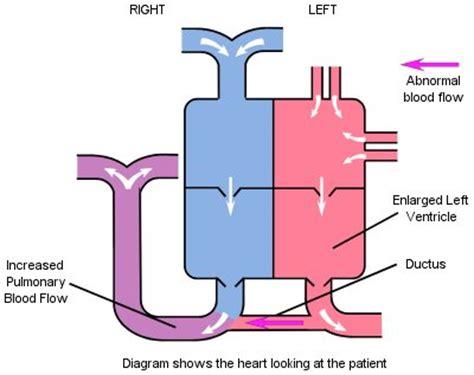 persistent ductus arteriosus (pda) down's heart group