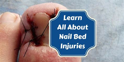nail bed laceration how to treat nailbed injuries medical preparedness