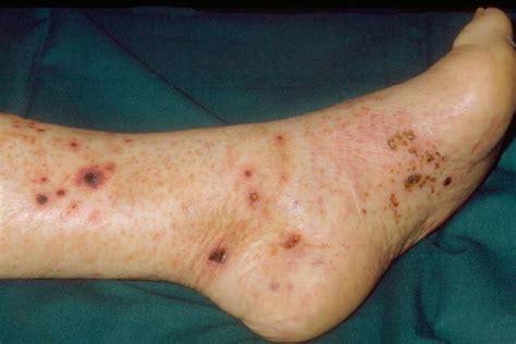 knie bluterguss innen leukozytoklastische vaskulitis symptome apotheken umschau