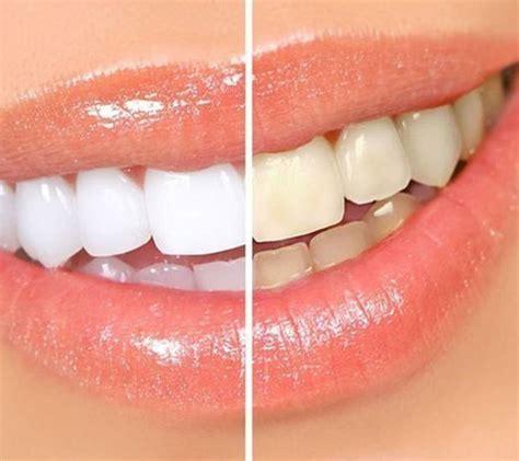 london dentist  camden private dentists  london