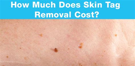 skin tag removal getting rid of skin tags how to get rid of skin tags fast and effectively