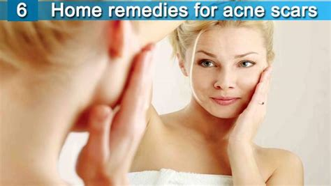 6 home remedies for acne scars on