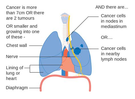 lung cancer diagram file diagram 2 of 3 showing stage 3a lung cancer cruk 014