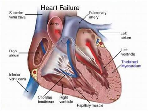 congestive failure congestive failure health care diary