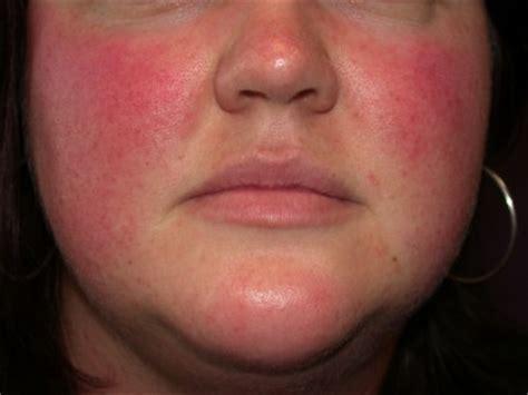 obat oles penyakit rosacea dari herbal mengobati luar