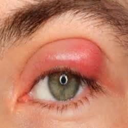 home remedy for stye eyelid stye