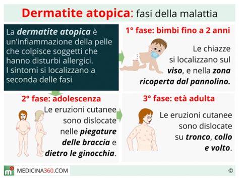 dermatite atopica bambini alimentazione dermatite atopica cause cura alimentazione e rimedi