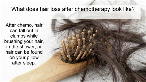 hair loss after chemotherapy hair loss from chemotherapy what is it who gets it how