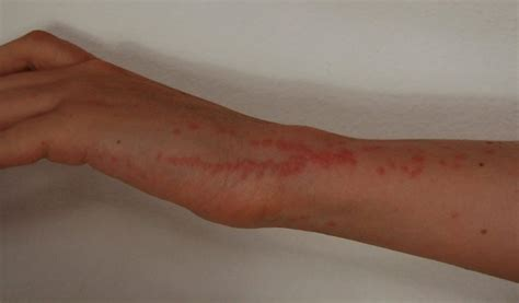 bed bug bites treatment cure  bites  control
