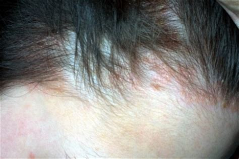 dermatite in testa dermatite seborroica cause e rimedi tutto quello devi