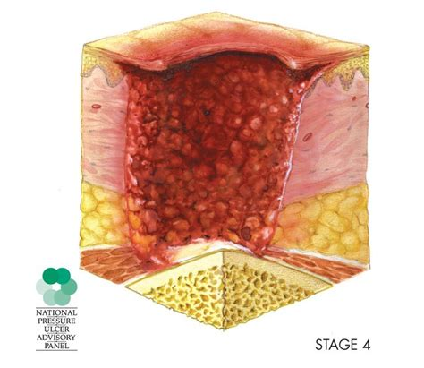 Decubitus Bed pressure ulcers after surgery risk factors and prevention