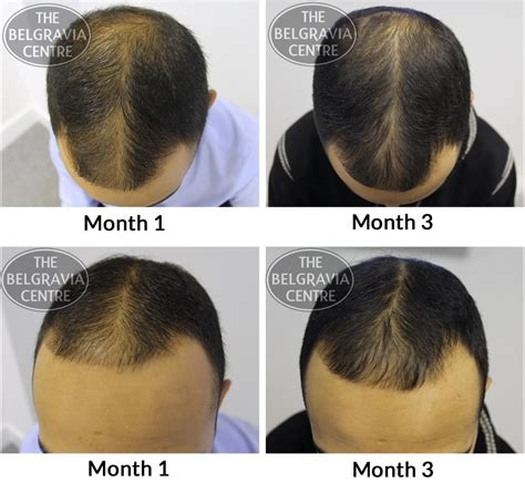 hair styles for foward hair growth pattern forced male pattern baldness shave hairstyle gallery