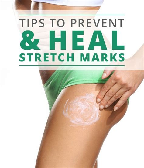 Health Tips Stretch Marks And Pregnancy by 440 Best Diy Home Remedies Images On