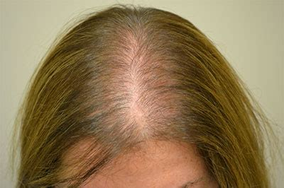 female pattern hair loss thyroid facts about hair loss real hair custom made wigs