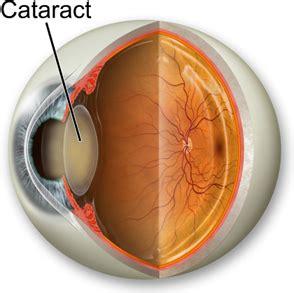 cataract surgery intraocular lens choices huntington eye