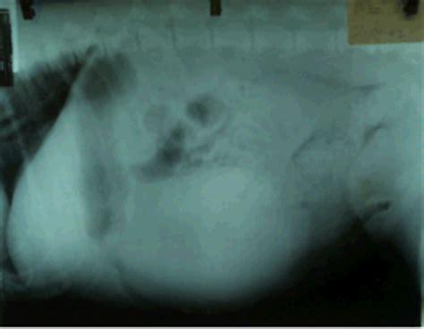 when to euthanize a with hemangiosarcoma splenectomy mar vista animal center