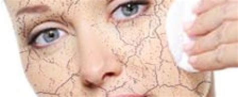 pelle disidratata alimentazione combattere la pelle secca beautips