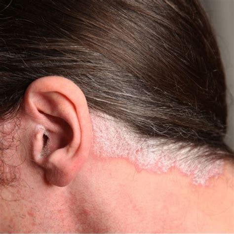 best hairstyles for scalp psoriasis solutions to common scalp problems for men s hair